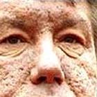 И снова о «недоотравлении» В.Ющенко